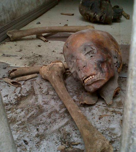 Menjijikkan Obat Kuno yang Terbuat Dari Organ Tubuh Manusia